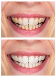 seacliff dental San Francisco before and after teeth whitening image