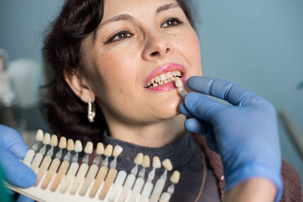 seacliff dental San Francisco cosmetic dentistry patient