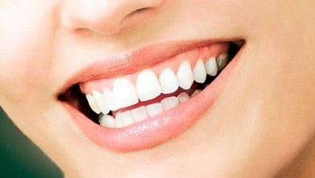 seacliff dental San Francisco white teeth healthy smile