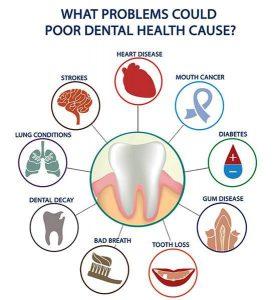 Seacliff dental San Francisco oral systemic health image